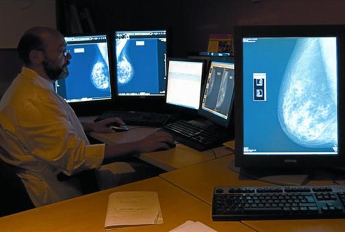 Un especialista revisa mamografías digitales en el Hospital del Mar de Barcelona.