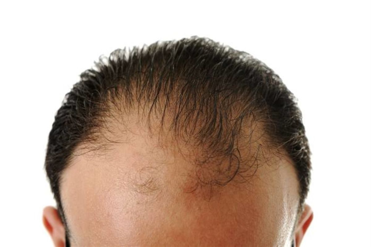 Problemas de alopecia y caída del cabello.