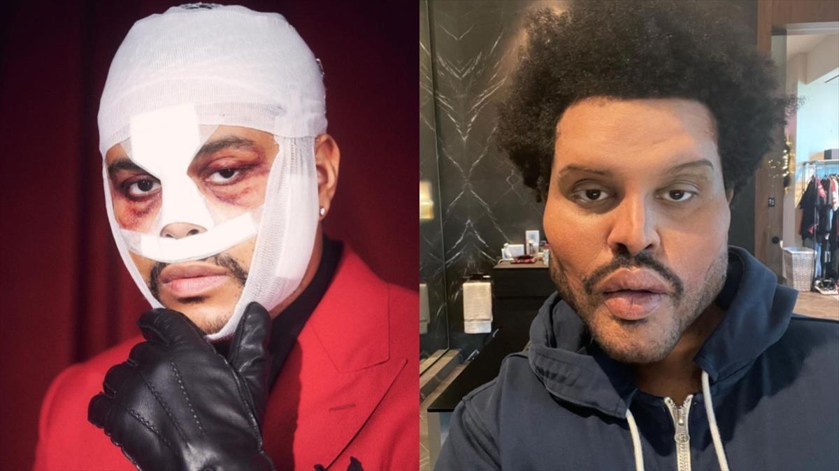 Los retoques estéticos The Weeknd causan estupefacción