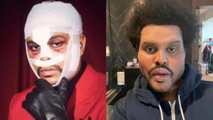 The Weeknd, antes y después.