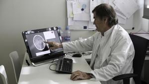 El neuropediatra del hospital Sant Joan de Déu Jaume Campistol observa una imagen del cerebro de un niño.