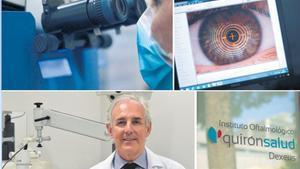 Trasplantament de còrnia, una tecnologia de precisió per optimitzar els resultats