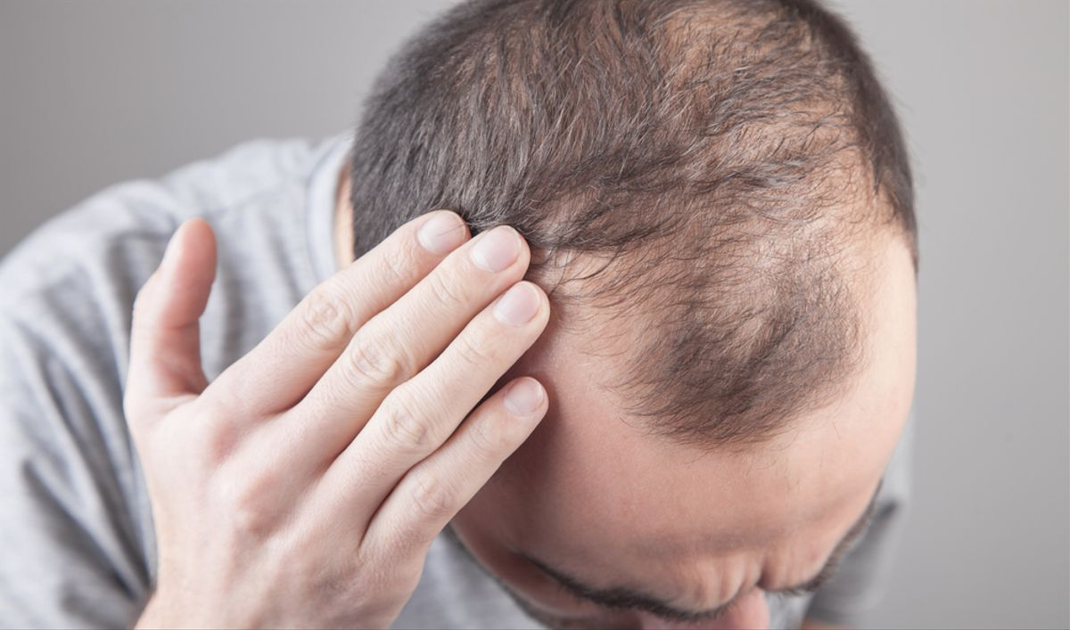 El 90% de los casos de alopecia en España son de tipo androgénico, es decir, se trata de una pérdida de pelo de origen hereditario