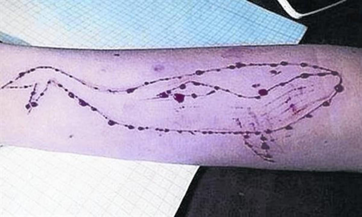 Ballena dibujada en un brazo con una cuchilla.