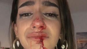 La chica de 19 años que ha denunciado en las redes que el viernes sufrió una agresión homófoba.