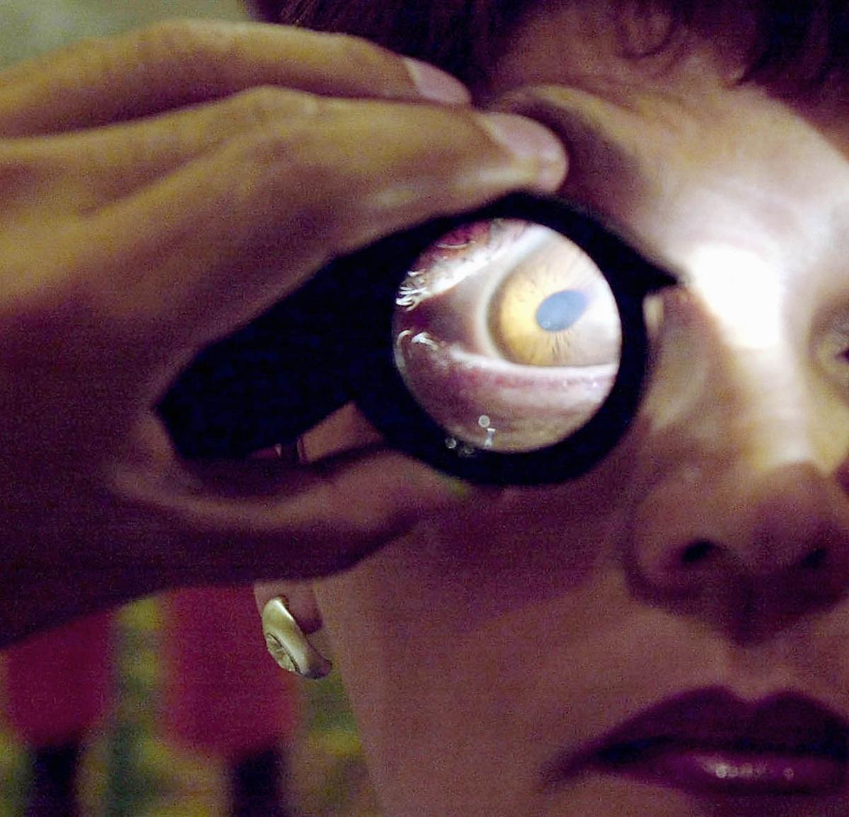 Un ojo bajo la lupa.