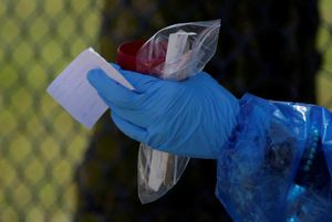 Un detalle de una prueba PCR para covid-19.
