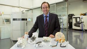 Pròtesis impreses en 3D