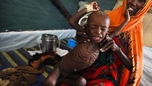 Un niño desnutrido, que huyó con su familia de los efectos de la sequía en el sur de Somalia, en un campamento para refugiados de Dadaab (Kenia).