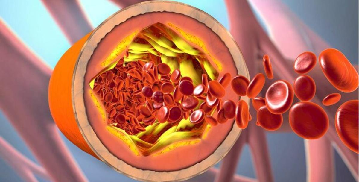¿Qué pasa si estoy tomando pastillas para el colesterol y me contagio de Covid-19?