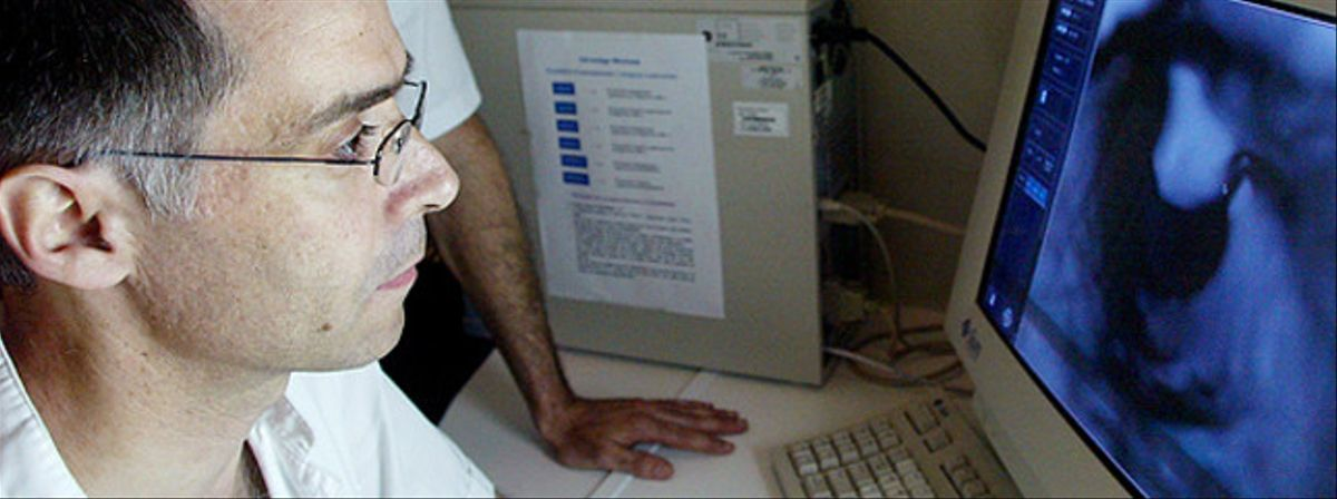 Un radiólogo ante la pantalla.