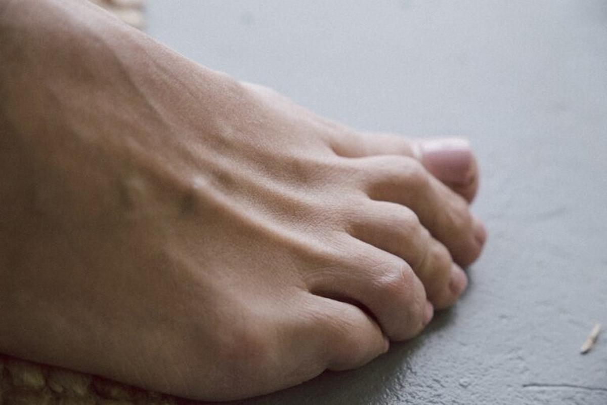 Callos en los pies: prevención, causas y tratamiento