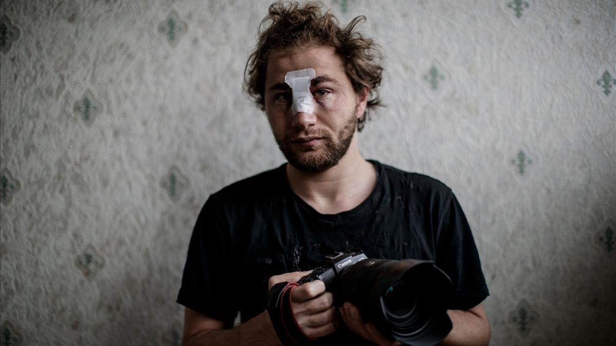 El fotógrafo sirio Ameer al-Halbi tras sufrir la agresión de la policía durante una manifestación el sábado en París.