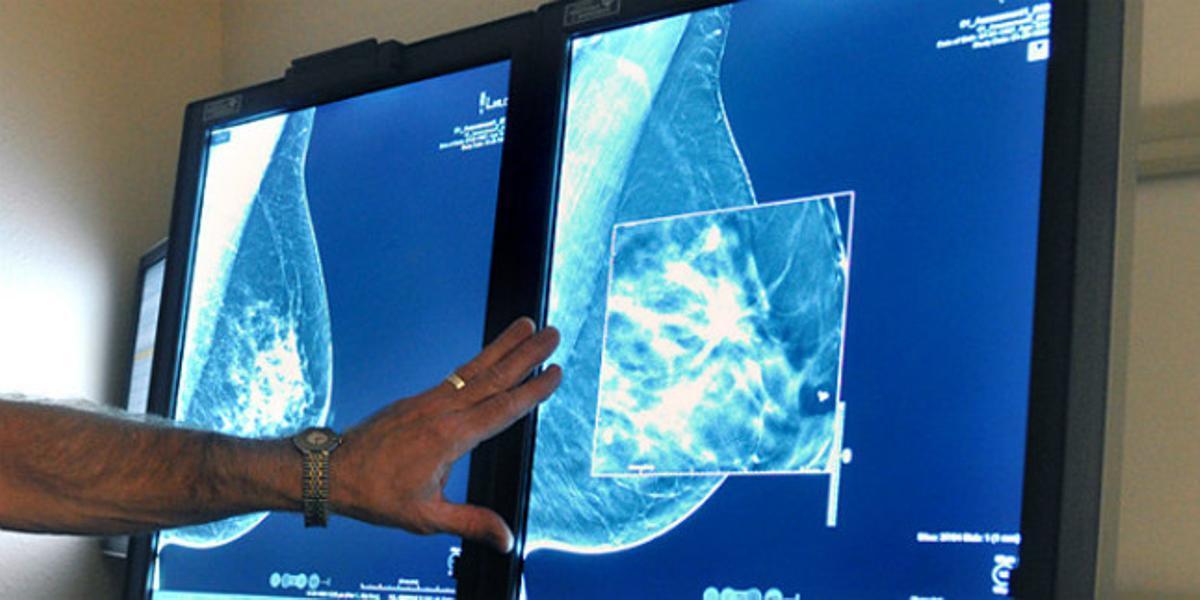 Un doctor observa la mamografía de una paciente.