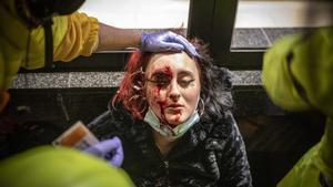 La mujer herida en un ojo presuntamente por una bala de foam de los Mossos en una protesta contra el encarcelamiento de Pablo Hasél, en Barcelona.