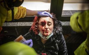 Mujer herida en el ojo durante el enfrentamiento entre manifestantes y Mossos tras la manifestación de Barcelona contra la detención del rapero Pablo Hasél.