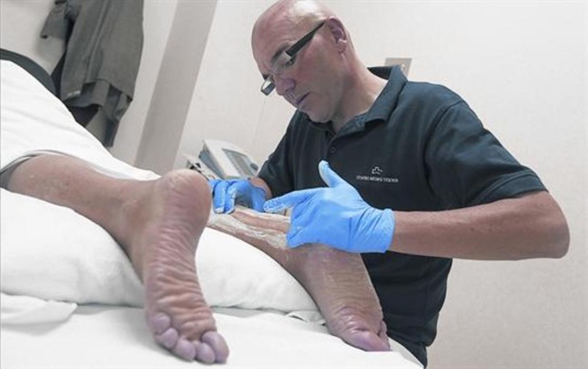 MASAJE FISIOTERAPÉUTICO.Huélamo aplica una friega en la zona afectada por una tendinitis de Aquiles posquirúrgica.
